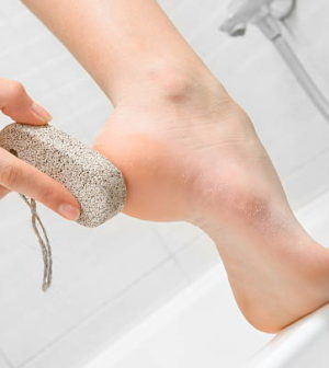 Pumice Stone For Feet